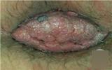 如何自我检查是得了肛乳头瘤?
