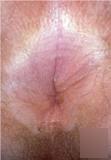 肛门不舒服是什么病?